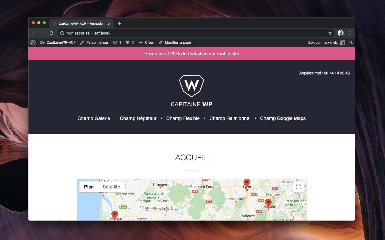 Capture d'écran du site avec la prise en charge des valeurs des champs d'option