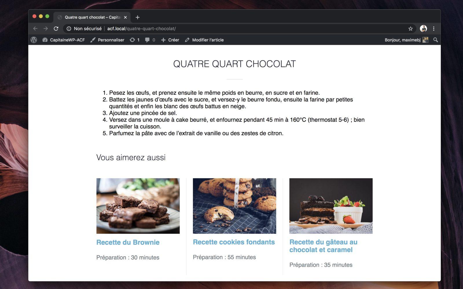 Capture d'écran de la page d'un article avec les articles similaires listés à la fin