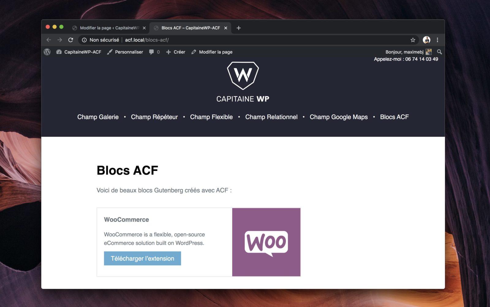 Aperçu du rendu final de notre bloc Extension géré par ACF.